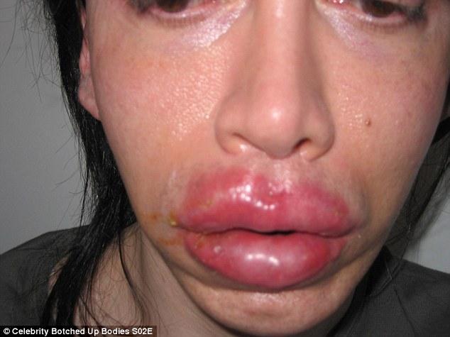 Dễ nhận thấy đôi môi của nam ca sĩ bị biến dạng dày phồng lên sau cuộc phẫu  thuật môi.