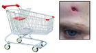 Cảnh báo tai nạn ở trẻ nhỏ từ chiếc xe đẩy trong siêu thị