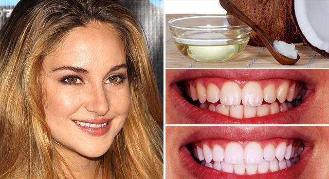Cả Hollywood đang đổ xô đi súc miệng với... dầu dừa để thơm miệng, trắng răng!