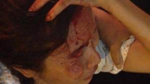 Bị công an nắm tóc, người bán hàng rong ở Sài Gòn chảy máu bê bết