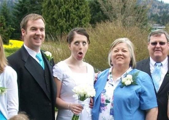 Cô dâu đau điếng