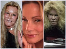 Khuôn mặt ngày càng đáng sợ của 'người đàn bà mưu sát chồng' Jocelyn Wildenstein