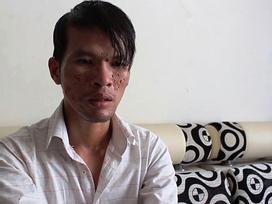 Nếu xử ở Campuchia, kẻ bạo hành bé trai có thể lãnh án 20 năm tù
