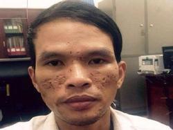 Kẻ chích điện hành hạ dã man bé trai Campuchia bị khởi tố, bắt tạm giam