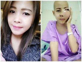 Mỹ nữ Thái gây sốc với gương mặt dị dạng vì ung thư xương