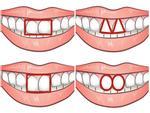 Tướng răng cửa tiết lộ điều gì về con người của bạn-3