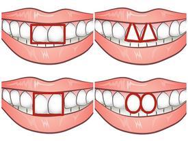 Không đùa đâu, răng cửa cũng có thể tiết lộ tính cách của bạn