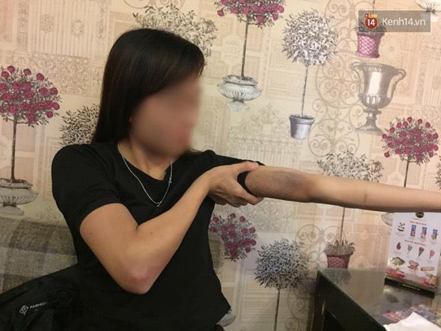 Nỗi kinh hoàng của cô gái sau khi bị bạn trai đánh dã man, thâm tím hết cả người - Ảnh 1.