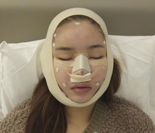Những sao Việt phẫu thuật thẩm mỹ trong năm 2016: Người thành công - Kẻ thành thảm họa-6