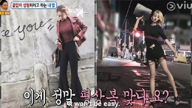 Nữ sinh Hàn Quốc phẫu thuật thẩm mỹ để có nét đẹp đậm chất tây như Kylie Jenner - Ảnh 6.