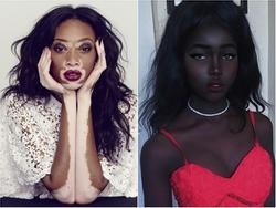 10 cô gái đánh bay mọi chuẩn mực về cái đẹp trên khắp thế giới