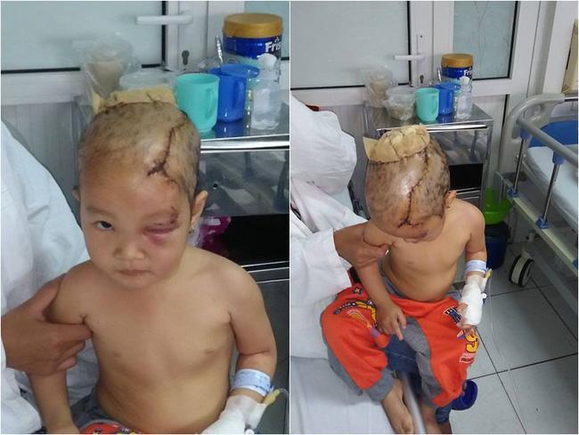 Thanh Hóa: Bé gái 3 tuổi bị chó hoang tấn công suýt mất mạng - Ảnh 1.