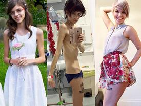 Từ bỏ ăn kiêng, nhan sắc những cô gái này thay đổi đến chóng mặt
