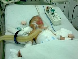 Con trẻ 'dính' tai nạn thương tâm, thậm chí mất mạng sống bởi cha mẹ bất cẩn như thế này