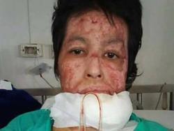 Người phụ nữ Thái Lan bị chồng tẩm xăng thiêu sống vì ghen