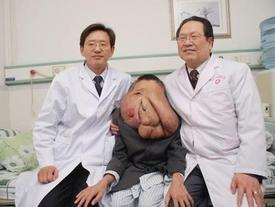 Clip: Cận cảnh cuộc sống sau phẫu thuật của 'người voi'