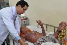 Nổ biến áp ở Sài Gòn, 2 nhân viên điện lực bỏng nặng