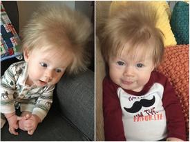 """Mái tóc """"sét đánh"""" bẩm sinh của bé trai đáng yêu"""
