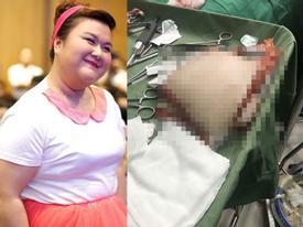 Á quân 'Bước nhảy ngàn cân' Thủy Tiên tiết lộ hình ảnh đại phẫu hút mỡ khiến ai cũng shock