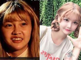 Loạt hotgirl Trung Quốc bị bóc mẽ phẫu thuật thẩm mĩ