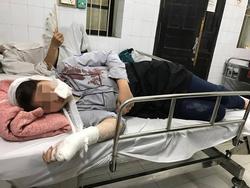 Hà Nội: Nữ sinh lớp 10 bàng hoàng kể lại phút bị nhóm thanh niên vây đánh chảy máu đầu