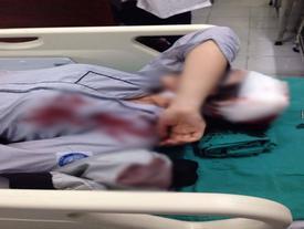 Xác định đối tượng dùng tuýp sắt chặn đánh nữ sinh lớp 10 sau giờ tan trường ở Hà Nội