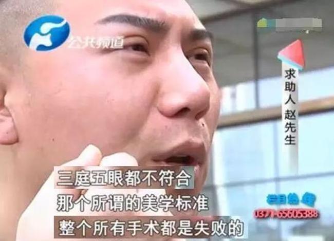 Chi gần 200 triệu đồng cắt mí mắt và nâng mũi để đẹp như hot boy, người đàn ông nhận cái kết đắng - Ảnh 2.