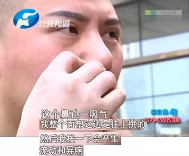 Chi gần 200 triệu đồng cắt mí mắt và nâng mũi để đẹp như hot boy, người đàn ông nhận cái kết đắng - Ảnh 6.