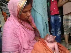 Hi hữu: Em bé mới sinh bị khuyết não nhìn giống như người ngoài hành tinh