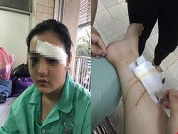 Cô gái 16 tuổi bị côn đồ hành hung, cắt tai