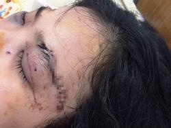 Nữ chủ mưu cắt tai thiếu nữ 16 tuổi ở Sài Gòn khai gì?