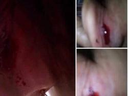 Cô giáo mầm non 'quệt tay' làm chảy máu tai trẻ 4 tuổi