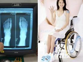Những đôi chân biến dạng khủng khiếp của dàn mỹ nhân Hoa ngữ chỉ vì mê giày cao gót