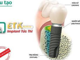 5 bước cấy ghép răng Implant nhanh chóng