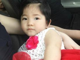 Tin hot trong ngày: Bé gái Lào Cai da bọc xương ngày nào giờ bụ bẫm, xinh như công chúa