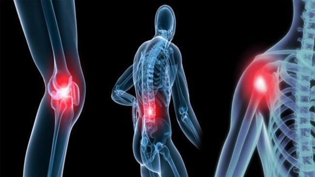 7 nguyên tắc cần thực hiện đầy đủ để bảo vệ xương khớp khỏe mạnh - Ảnh 1.