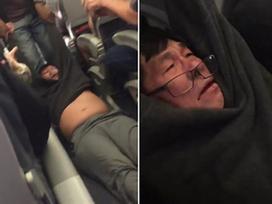 Ảnh hot trong tuần: Hành khách gốc Việt gãy mũi sau khi bị lôi thô bạo khỏi máy bay
