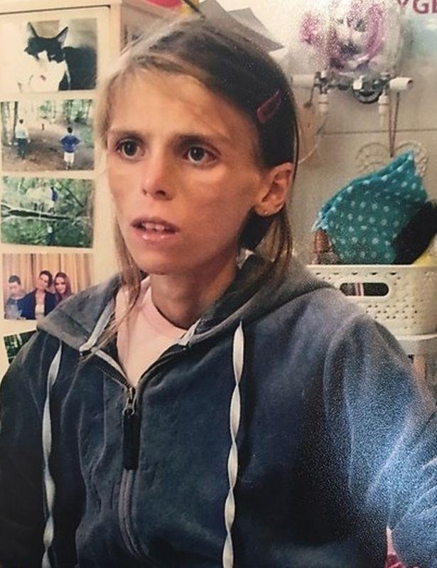 Ám ảnh với cân nặng của mình, cô bé 15 tuổi lao đầu trước tàu hỏa tự tử - Ảnh 2.
