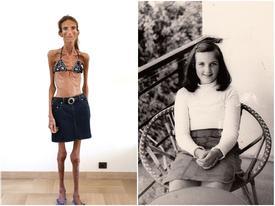 Người phụ nữ gầy nhất thế giới là bài học cho những bạn gái có ý định ép cân quá đà
