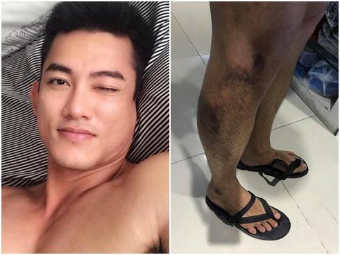 Lăn khỏi gầm xe tải, người mẫu Lê Trung Cương thoát chết trong gang tấc