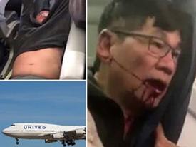 United Airlines phải trả bao nhiêu cho sự im lặng từ bác sĩ Dao?