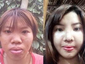 Sau phẫu thuật, cô gái 'Thị Nở' bị tố sống sang chảnh trong khi con gái ở quê nheo nhóc