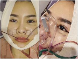 Quế Vân công khai clip phẫu thuật thẩm mỹ 6 bộ phận trên mặt khiến ai xem cũng shock