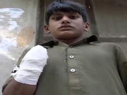 Cậu bé 13 tuổi bị bà chủ cắt đứt bàn tay gây phẫn nộ