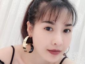 Sao Việt: Phẫu thuật thẩm mỹ và những cơ hội dấn thân