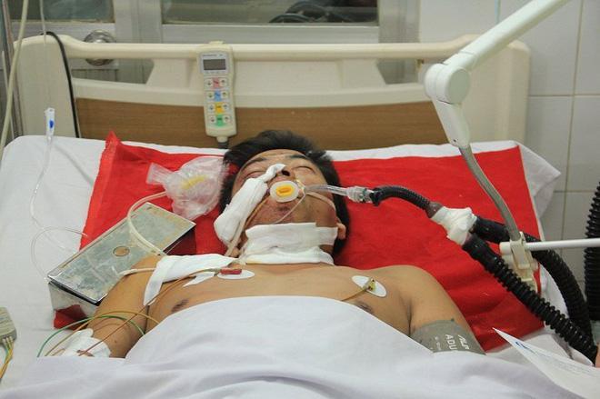 Tai nạn thảm khốc khiến 13 người chết ở Gia Lai: Các nạn nhân giờ ra sao? - Ảnh 1.