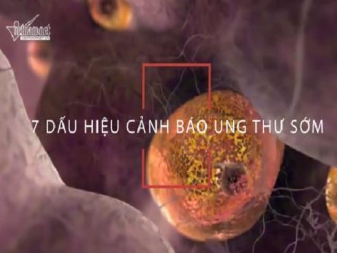 Cảnh báo ung thư từ 7 dấu hiệu tưởng vô hại