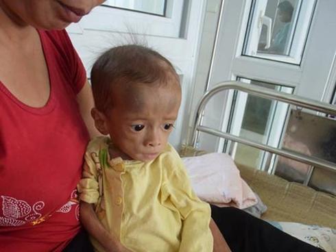 Nước mắt người mẹ có con mắc bệnh ngày càng teo đét, 4 tuổi nặng 3.6kg