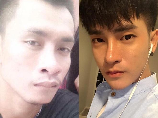 Thái Lan: Chàng trai 'đập mặt đi xây lại' để biến thành soái ca