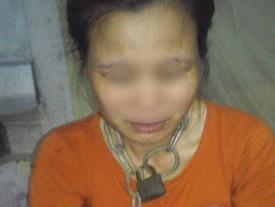 Thái Bình: Chồng dùng nhục hình xích cổ vợ, bẻ gãy tay con phải nhập viện